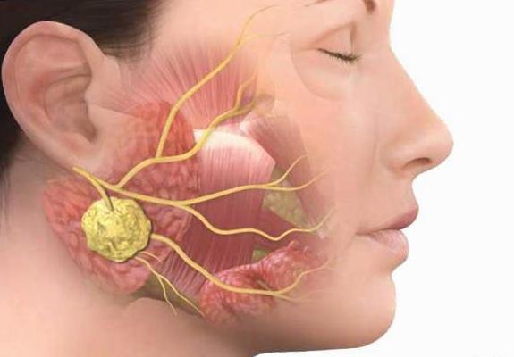 Chirurgie de la glande parotide